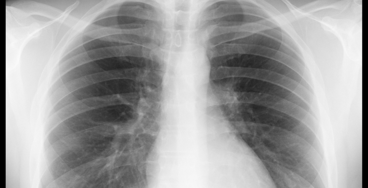 X ray image of a human's lungs